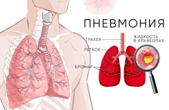 pnevmoniya-